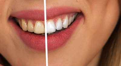 Tips for a White Bright Smile